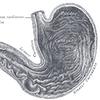 Jak zapobiegać wrzodom żołądka?
