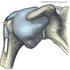Naturalne metody leczenia zapalenia stawów (artretyzmu)